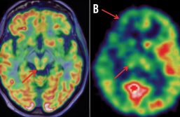 Imagerie métabolique : «L'apparition des traceurs des plaques amyloïdes a été une véritable révolution»
