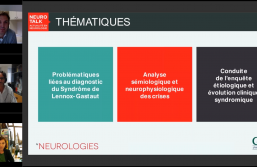 Le syndrome de Lennox-gastaut, les limites du diagnostic